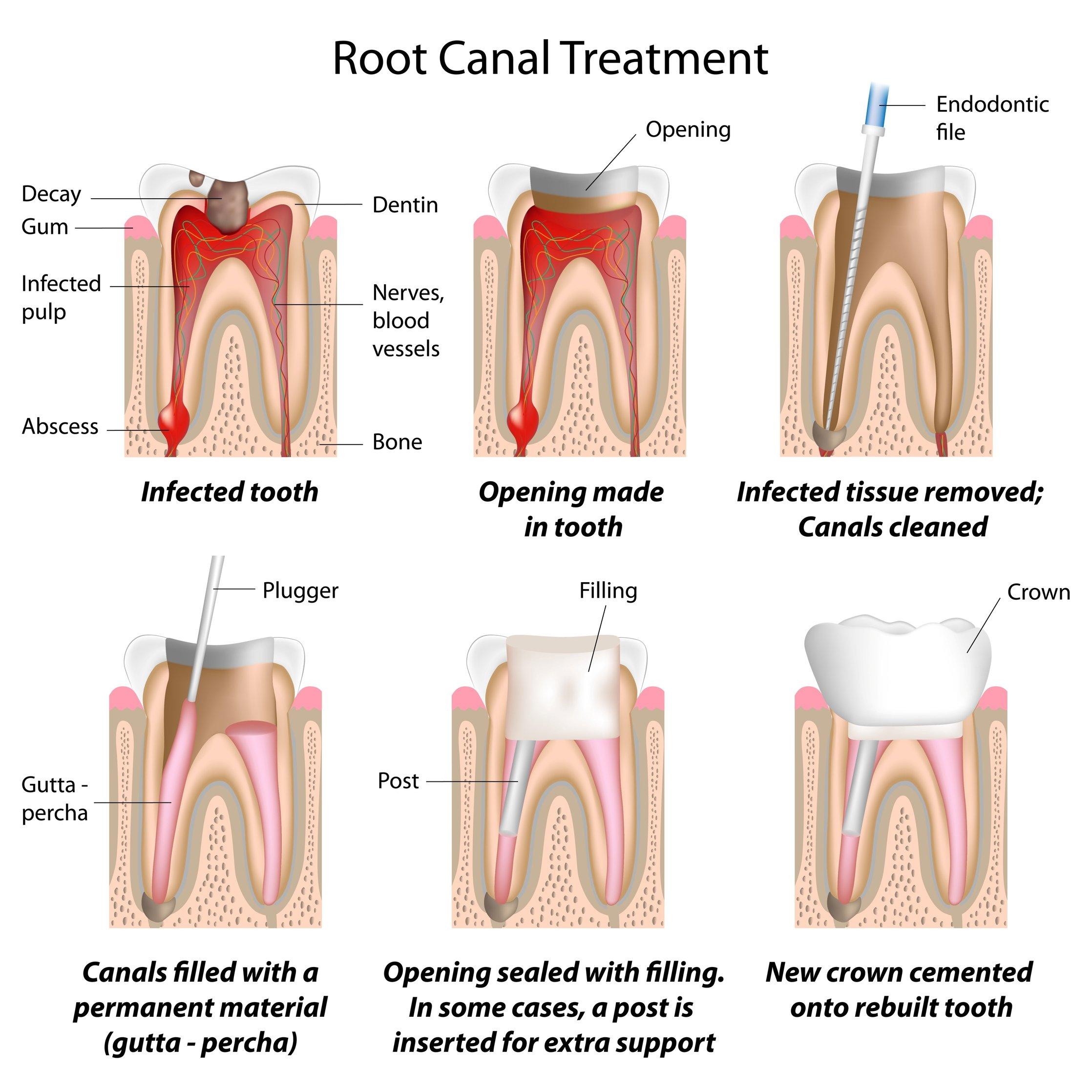 Лечение пульпита верхнего зуба