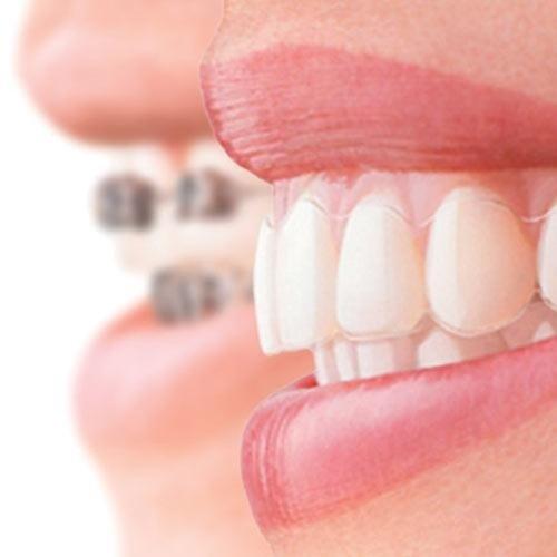 ortodonzia arona