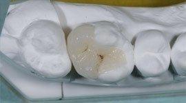 intarsio odontoiatrico