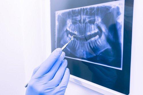 radiografia panoramica 3d