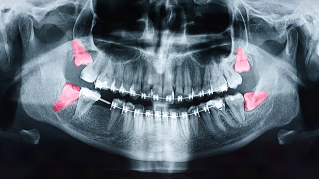 Common Causes of Tooth Pain: A Troubleshooting Guide