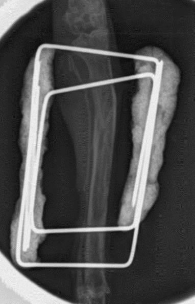 Xray 4 weeks after surgery