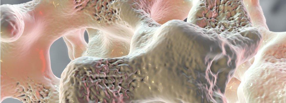 illustrazione 3D di un osso affetto da osteoporosi