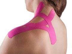 protesi muscolari