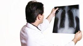 ecografia, radiografie, risonanza magnetica, risonanza magnetica aperta,