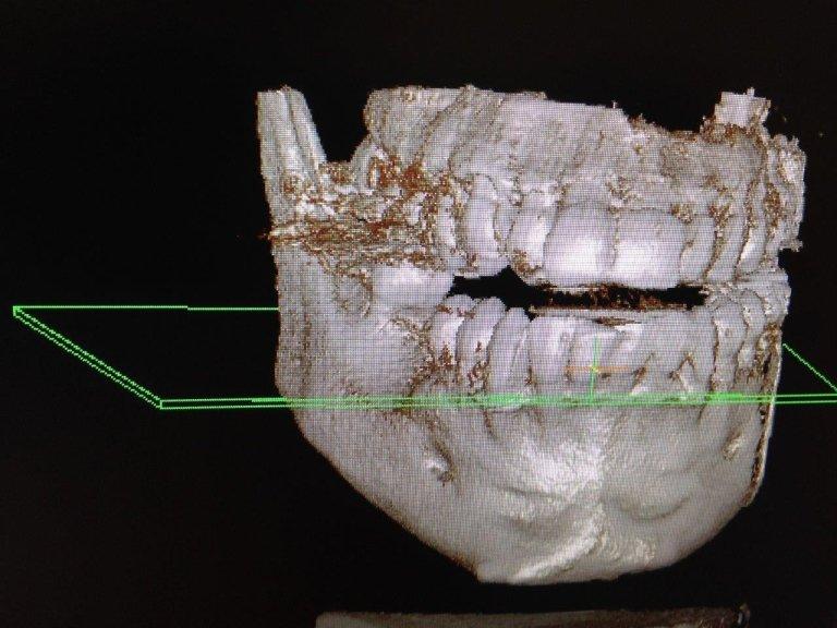 lastra sistema dentale