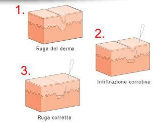 acido ialuronico verona
