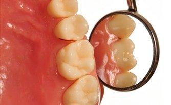 parodontologia dentista chirurgo