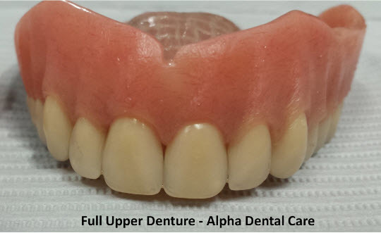 Full Upper Denture - Alpha Dental Care St. Louis