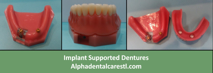 Implant Supported Dentures, Alpha Dental Care St. Louis MO