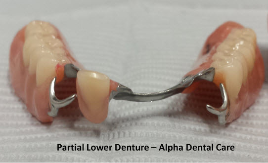 Partial Lower Denture - Alpha Dental Care, St. Louis