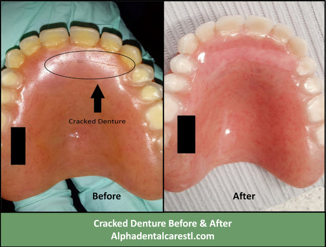Broken Denture Before and After, Alpha Dental Care