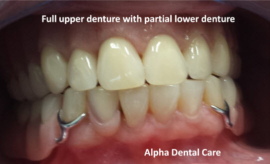 Full upper denture with partial lower denture, Alpha Dental Care in St. Louis