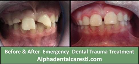 dental trauma - before and after treatment