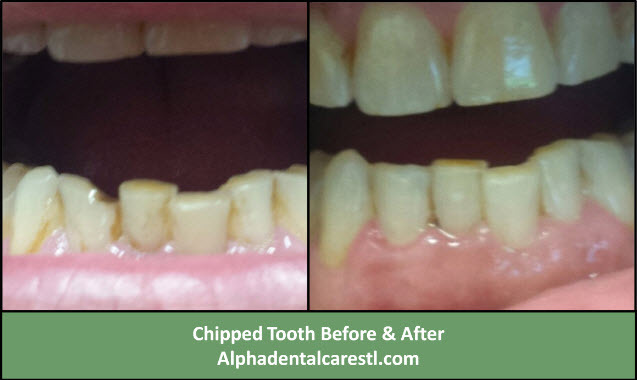 Chipped Tooth Before and After Dental Bonding, Alpha Dental Care