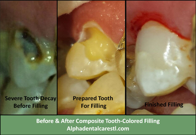 Severely Decayed Tooth Before and After Composite Tooth Colored Filling, Alpha Dental Care