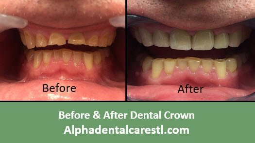 Before and After Dental Crown Example4, Alpha Dental Care in St. Louis