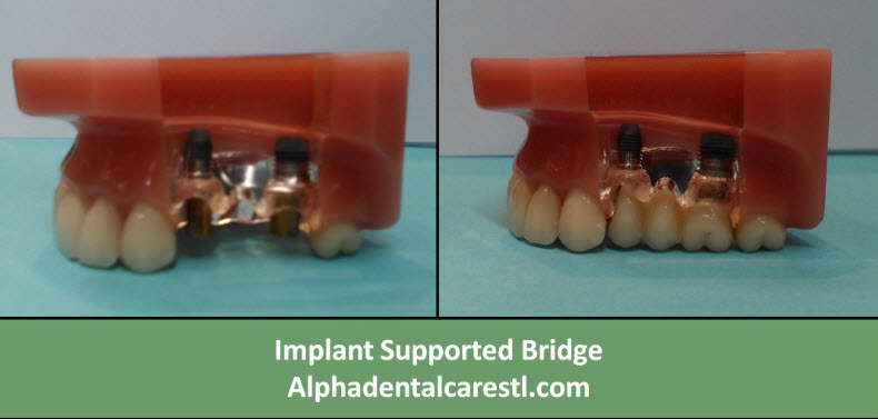 Implant Supported Bridge, Alpha Dental Care St. Louis MO