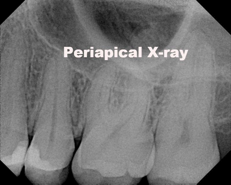 Periapical X-ray at Alpha Dental Care St. Louis