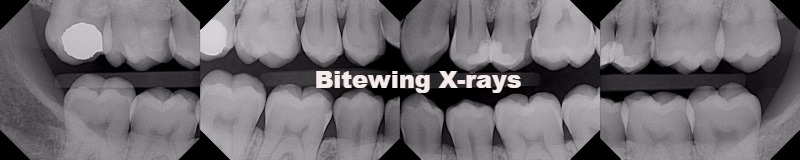 Bitewing X-rays, Alpha Dental Care St. Louis