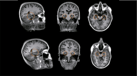 demenza, problemi psichici, medicina