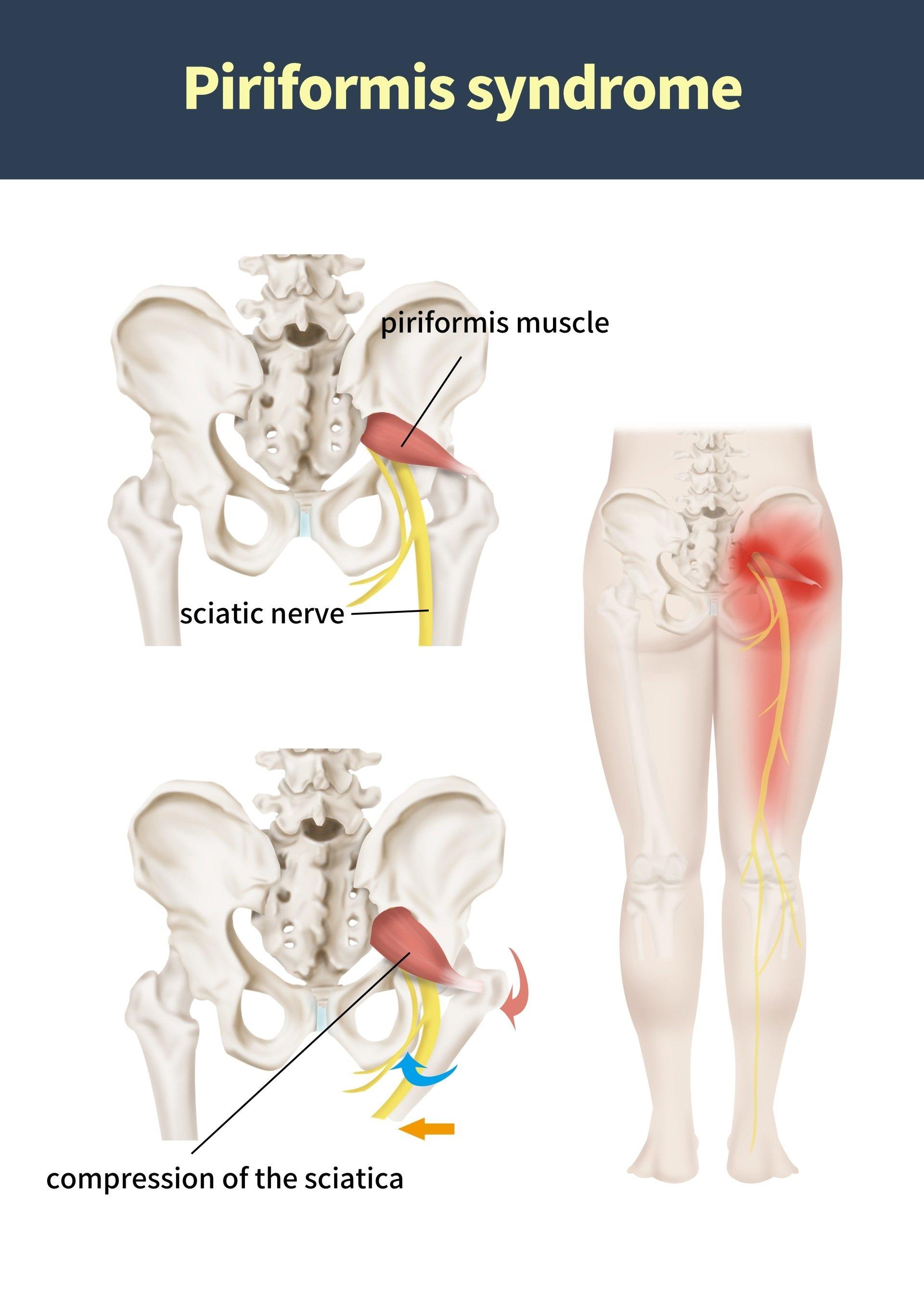 Buttock Pain & Piriformis Syndrome