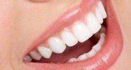 igiene orale, denti bianchi, pulizia dei denti