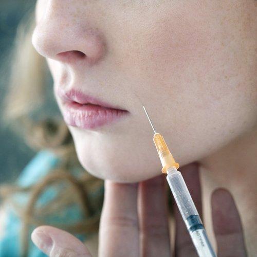 una donna durante un'iniezione di botox