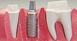 protesi dentarie, protesi fisse, protesi mobili