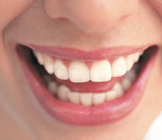 dentista, chirurgia orale, sbiancamento denti