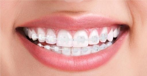 ortodonzia a Bergamo