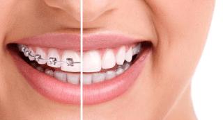apparecchi ortodontici bergamo