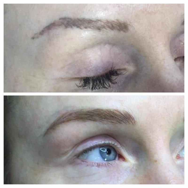 Eyebrows semi permanent removal
