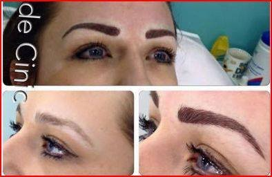 enlarged eyebrows