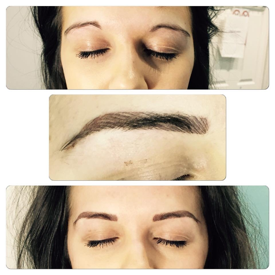 Eyebrow enlargement