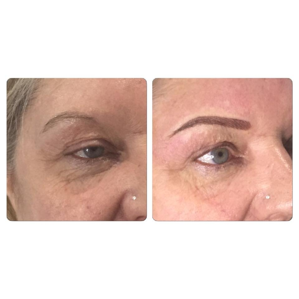 Eyebrow laser treatment