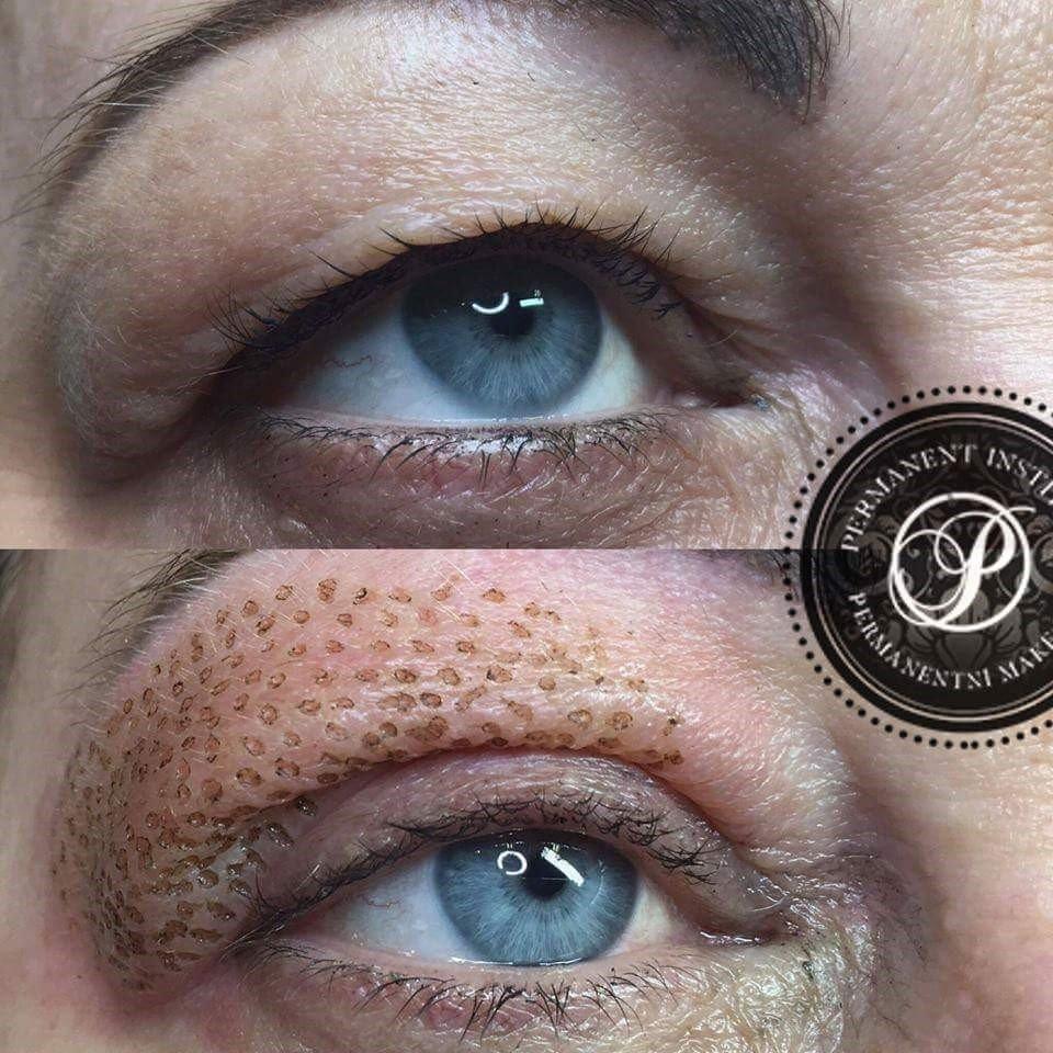 Fibreblast treating hooded eyelids