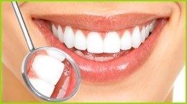 estetica dentale spoleto