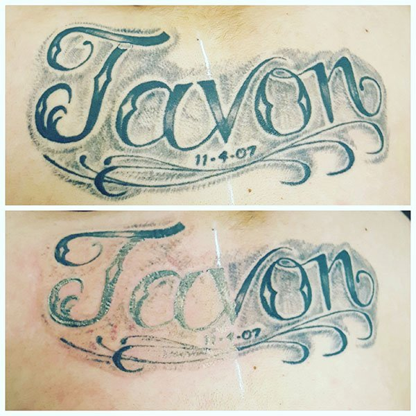 Before and after photo from one laser tattoo removal treatment