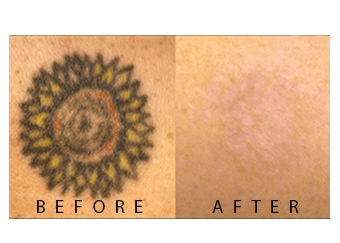 before_after_pico3