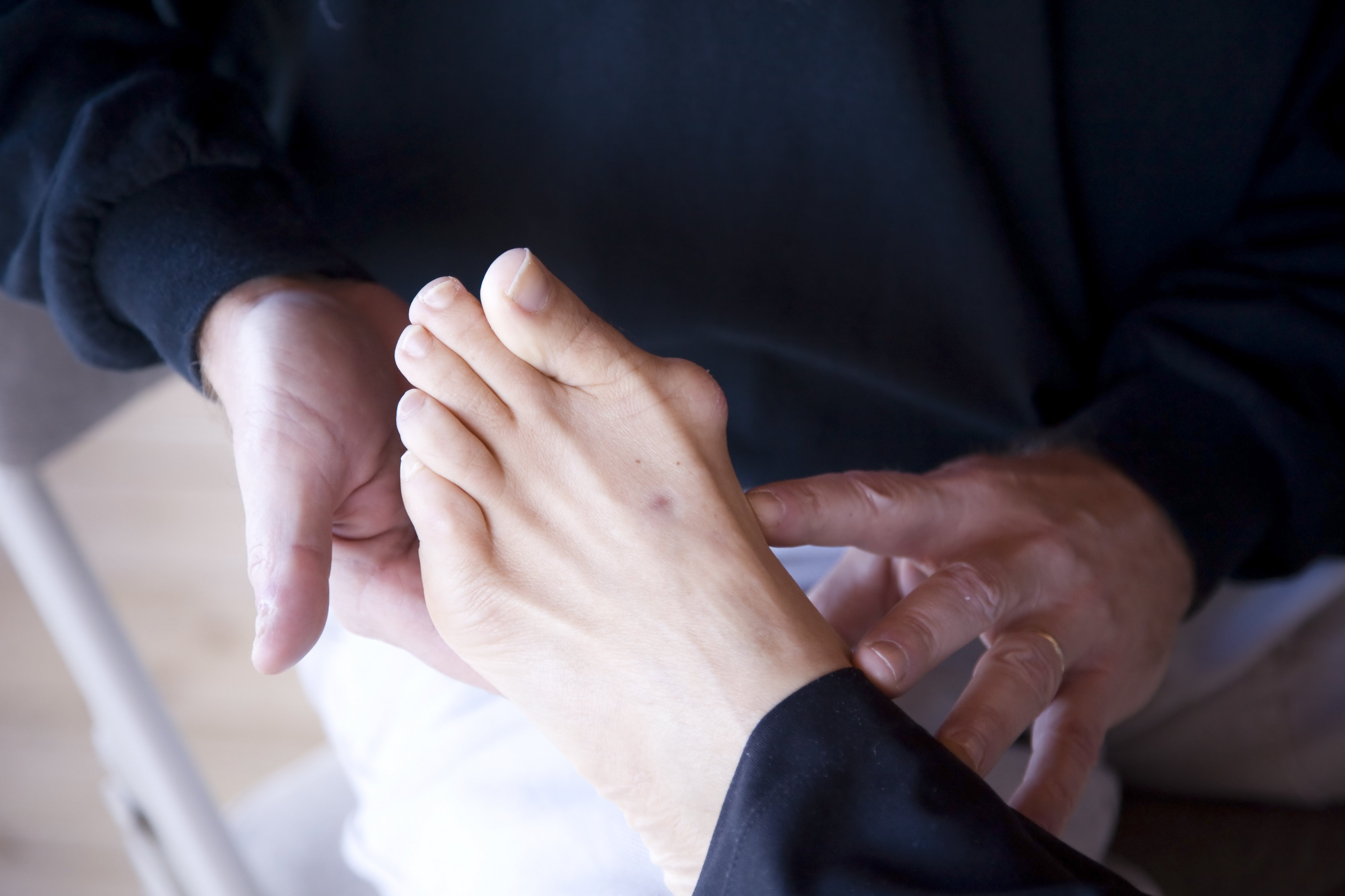 Bunion Treatment in Danvers, MA