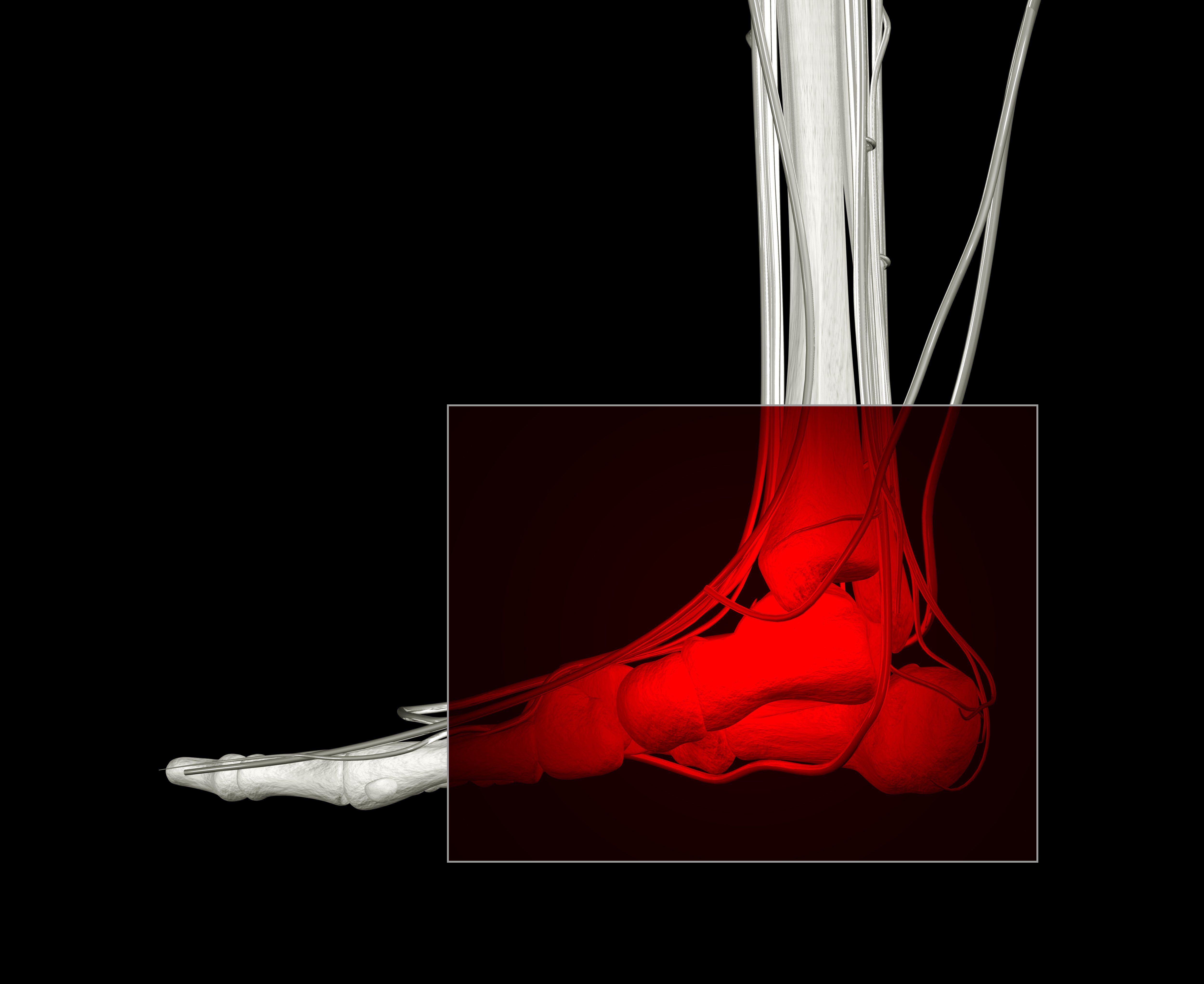 Heel Pain Treatment in Danvers, MA