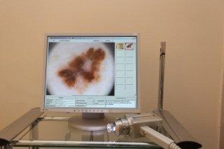 mappatura dei nei