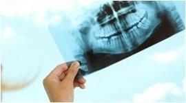 radiologia dentale