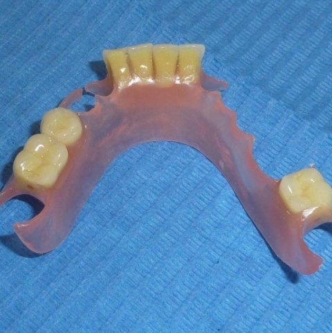 protesi in nylon Multiflex TCS, arcata inferiore