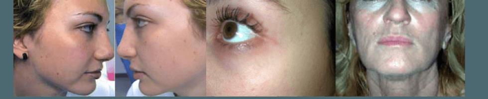 Dermatologia ed estetica