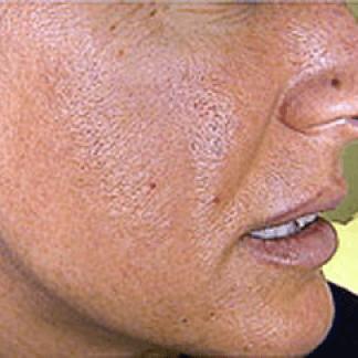 Estetica pelle del viso