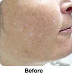 Estetica pelle