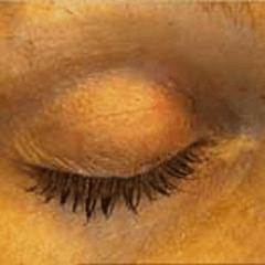 estetica occhi