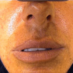 Estetica viso